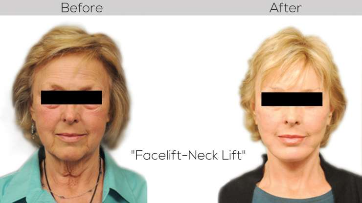 Look Twenty Years Younger with Facelifts and Neck lifts