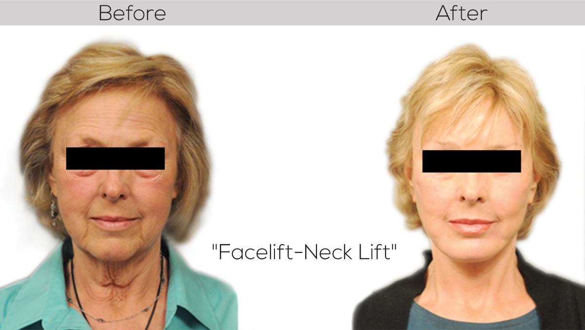 Facelift&necklift Synergy cosmetic surgery