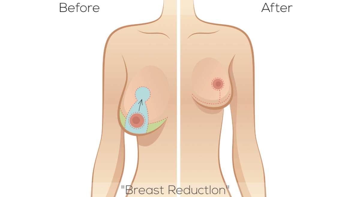 Is Breast Reduction and Breast Lift Surgery – A Smart Choice?