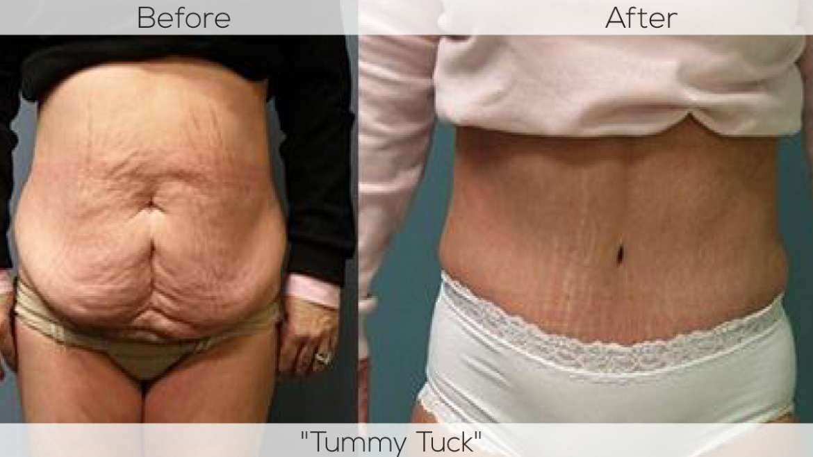 MUMMY MAKE OVER –  Want To Get Back to Your Pre-Pregnancy Shape? Just 'Tuck Up' with A Tummy Tuck!